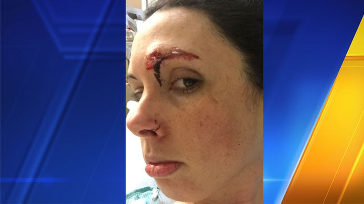 Woman fights off would-be attacker in Golden Gardens restroom